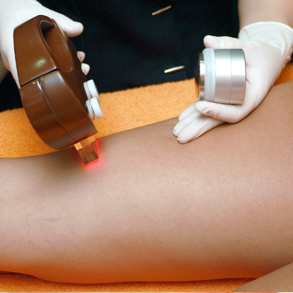 Hair Removal IPL